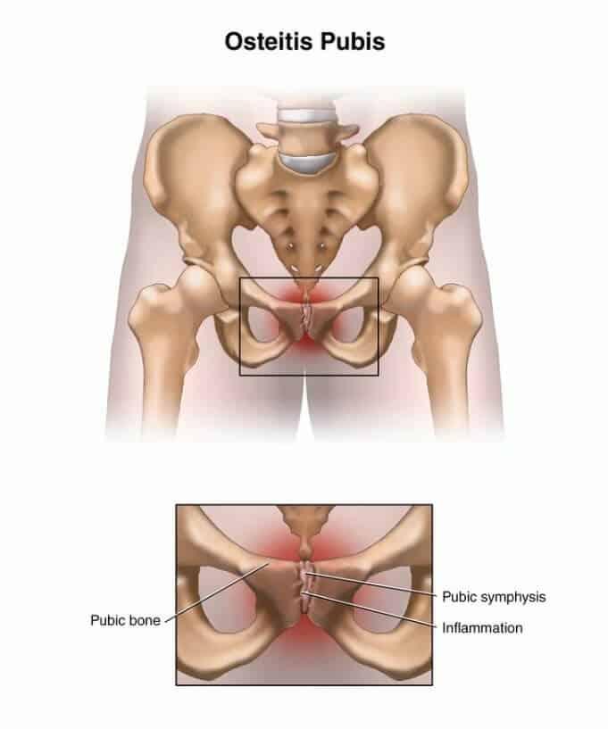 pubic bone tulang pubik wanita