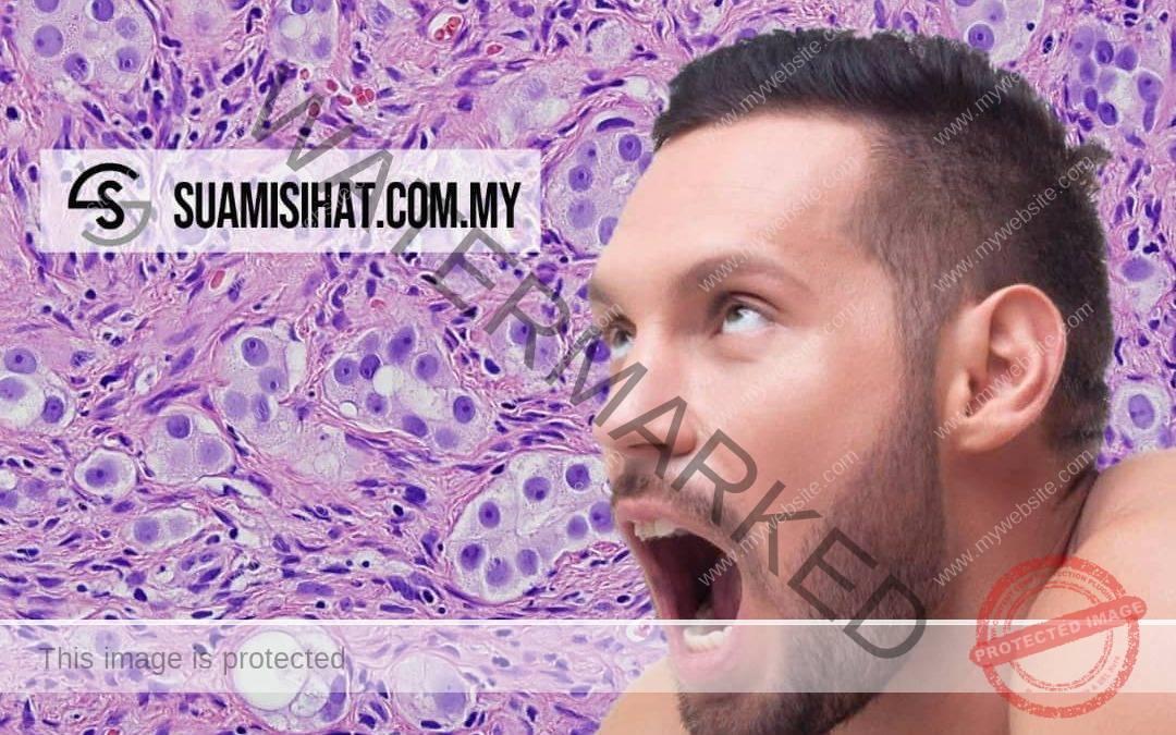Kanser Prostat Lelaki – Tanda-Tanda, Rawatan & Cara Pencegahannya untuk Anda