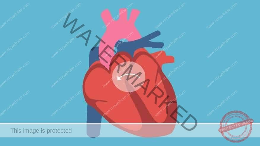 Kecacatan jantung
