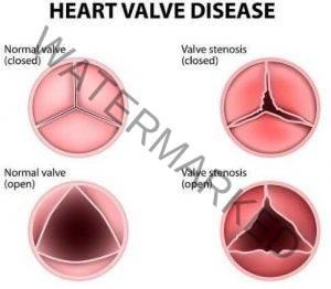 Penyakit Injap Jantung